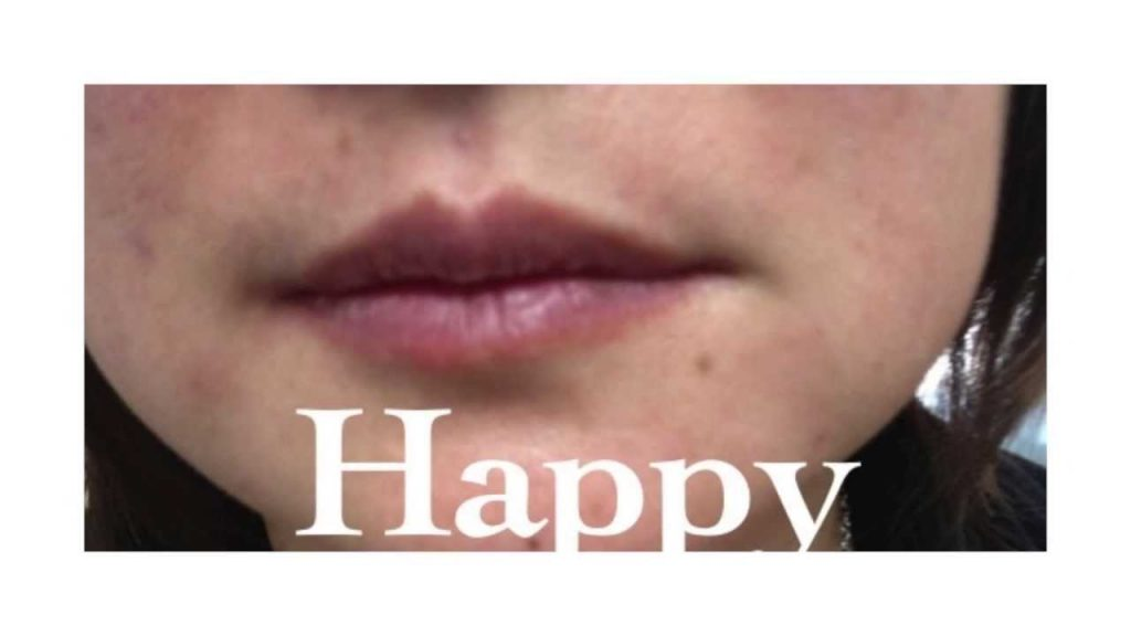 Lower Face Filler Rejuvenation   Skin Perfect Brothers Medical Spa